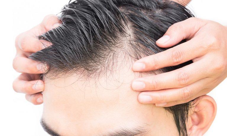 hair serum being applied to man's hair
