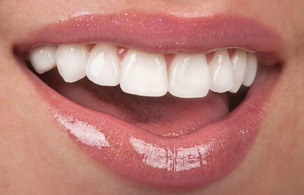 close shot of woman's teeth